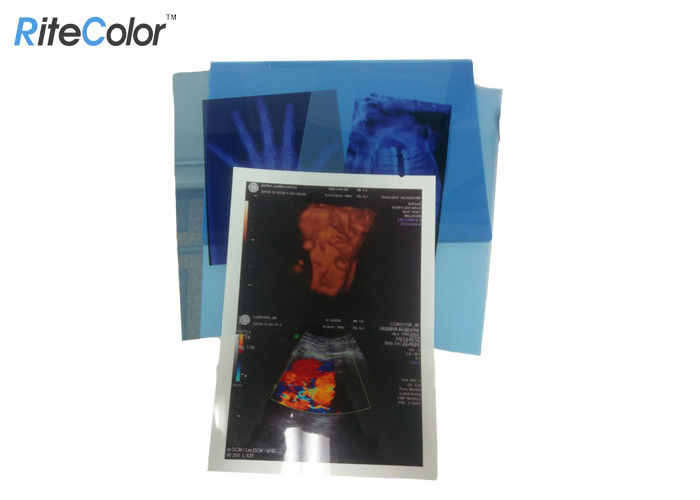 Digital Dry Medical Imaging Film For X Ray PET Inkjet Blue Medical Film 210mic